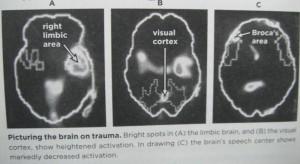 Brains scans of how mental health look.